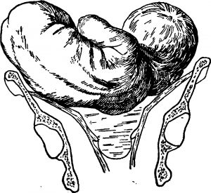 Поперечное положение плода