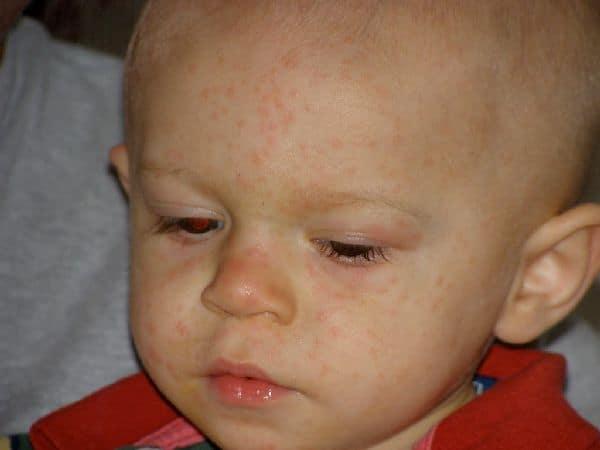 Краснуха у ребенка: признаки и симптомы, профилактика, лечение краснухи у детей
